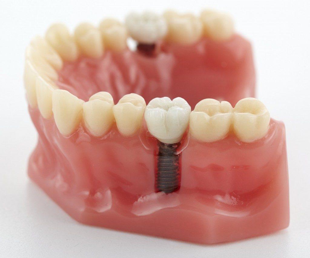 Dental prosthetics model